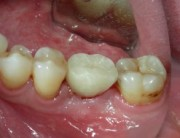 Los-Angeles-Implant-Dentist-300x189
