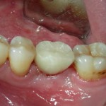 Dental-Implant-Dentist-150x150