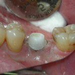 Implant-Dentistry-150x150