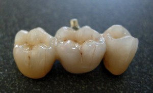 Dental-Bridge-300x183