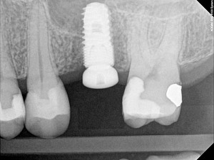 Dental-Implant-Dentist-300x225