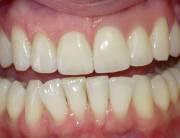 Cosmetic Dentist Dr. Arthur A Kezian DDS