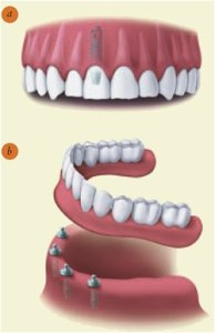 Dental Implants with a Los Angeles Dentist 1