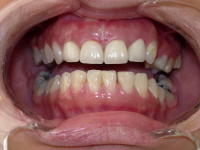 Anterior Esthetic After