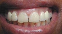 Implants and Porcelain Crowns