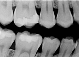expose dental x-ray