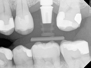 Dental-Implants-300x225 (1)