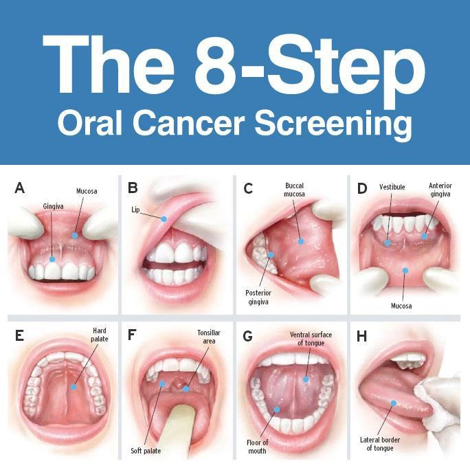 Oral Check Up