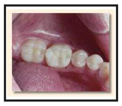Dental Procedures in Los Angeles | Cosmetic Dentistry