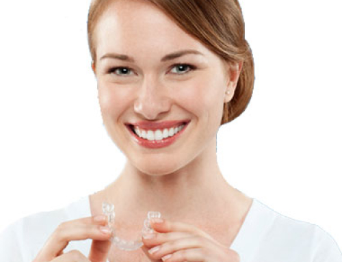 Los Angeles Dentist – Are You a Candidate for Invisalign?