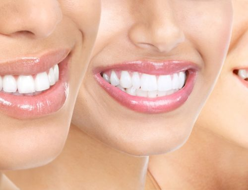 Teeth Whitening with a Los Angeles Cosmetic Dentist – Bright Smiles are Great Smiles!
