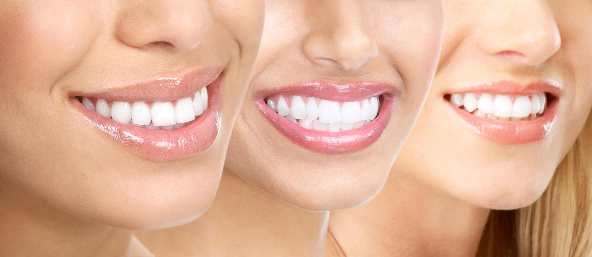 teeth_whitening