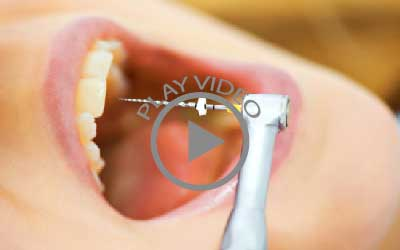 dental_root_canals