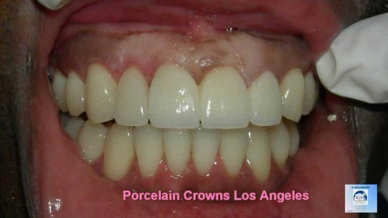Dr. Arthur A. Kezian – Dental Crowns