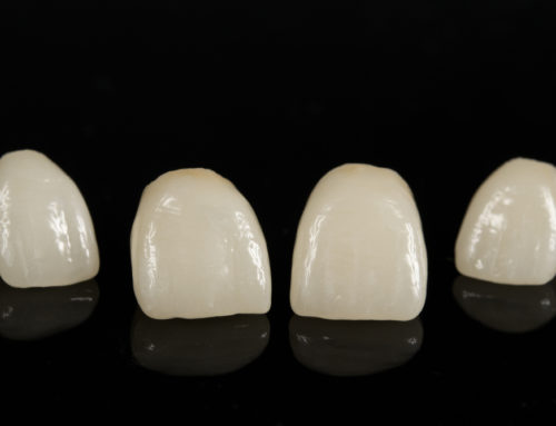 What Should You Do If Your Porcelain Dental Crown Fractures?