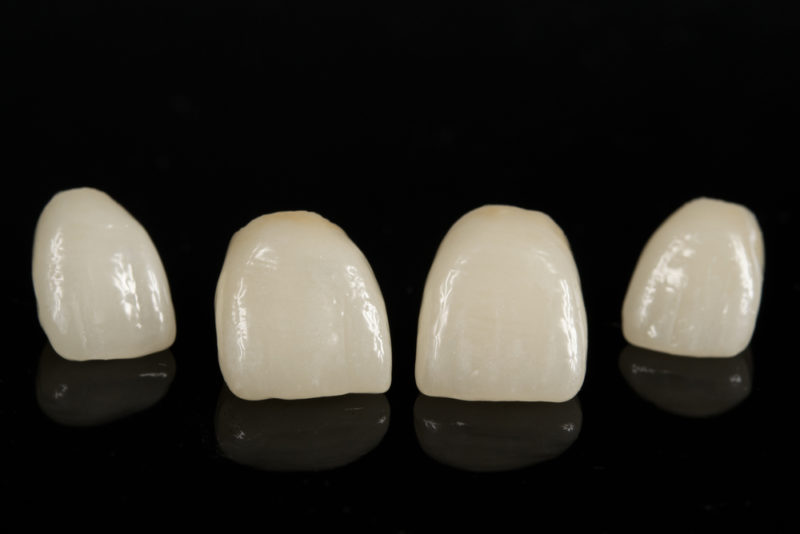 What you should do if you have a fractured porcelain crown what should you do if your porcelain dental crown fractures solutioingenieria Gallery