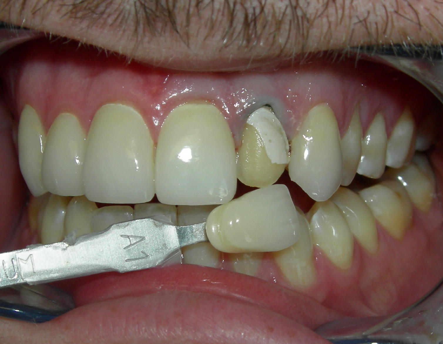 Fractured Porcelain Crown  Cosmetic Dentist in Los Angeles