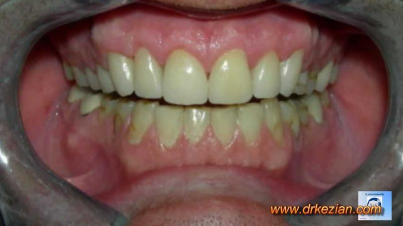 Cosmetic Dentist – Get the Best Smile