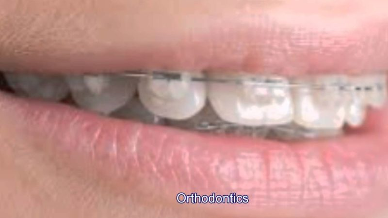 Dental Braces – The Ultimate Solution to Your Smile