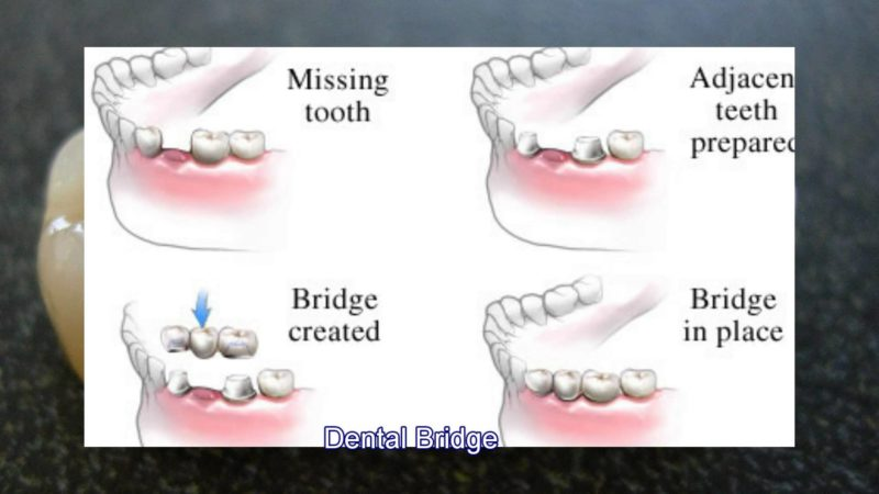 Dental Bridges – Be Confident with your Smile