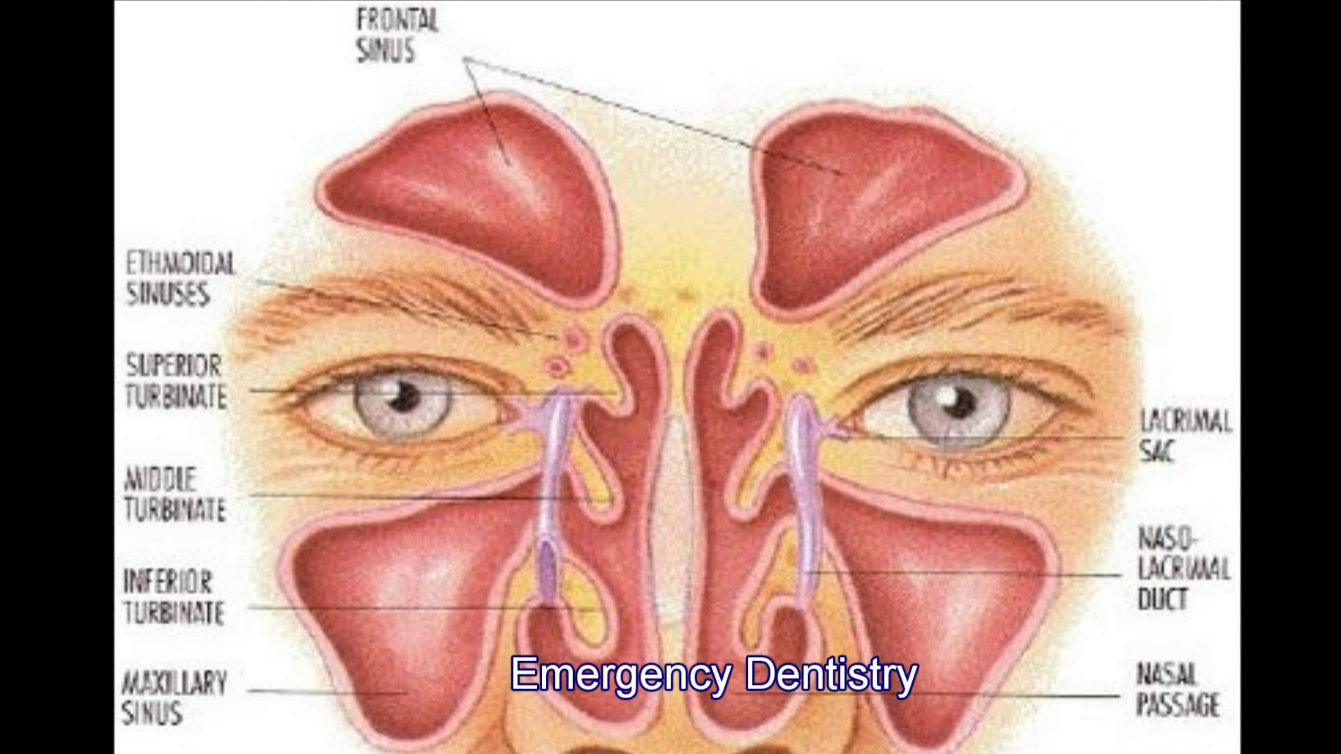Sinus Infection Archives - Dr Arthur A. Kezian DDS