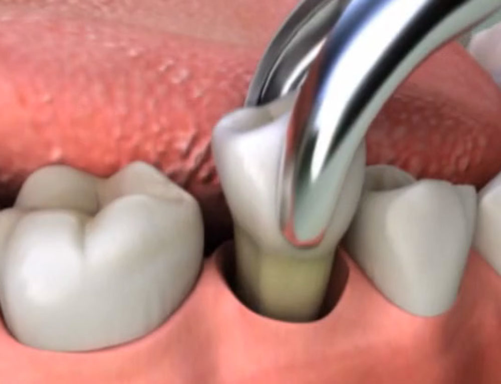 Need a Tooth Extracted?  Here's What You Need to Know