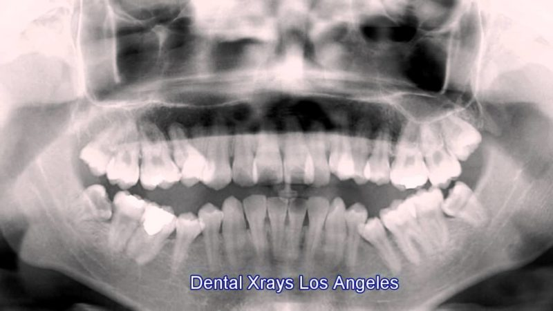 Decreased Radiations with Digital X-Rays