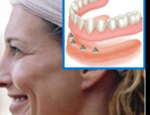 Replace Your Dentures with Dental Implants