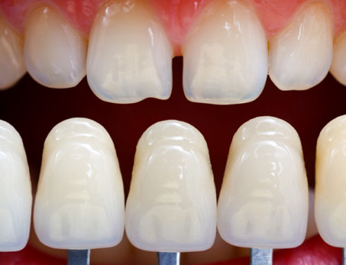 What is the Cost of Dental Veneers?  These 4 Things Determine the Answer