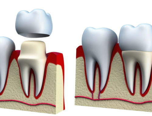 Recementing Dental Crown: What Happens When Your Crown Falls Off?