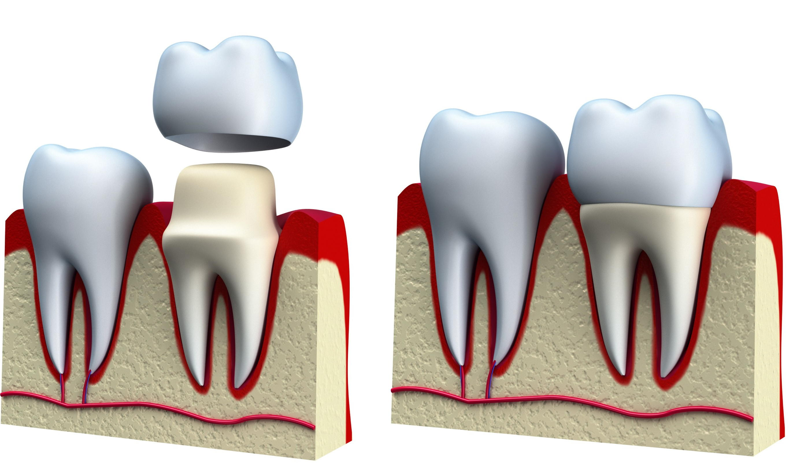 Recement Dental Crown