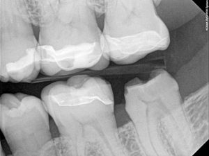 recementing a dental crown