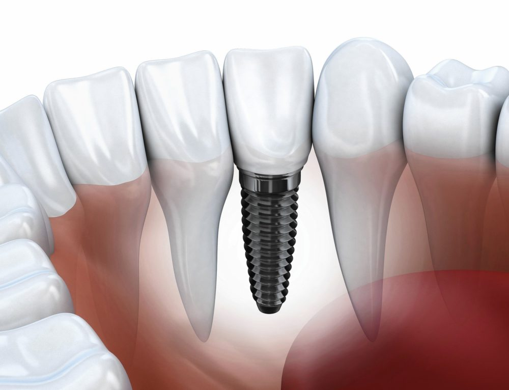 Implant Dentist Los Angeles | All You Need to Know About Dental Implants