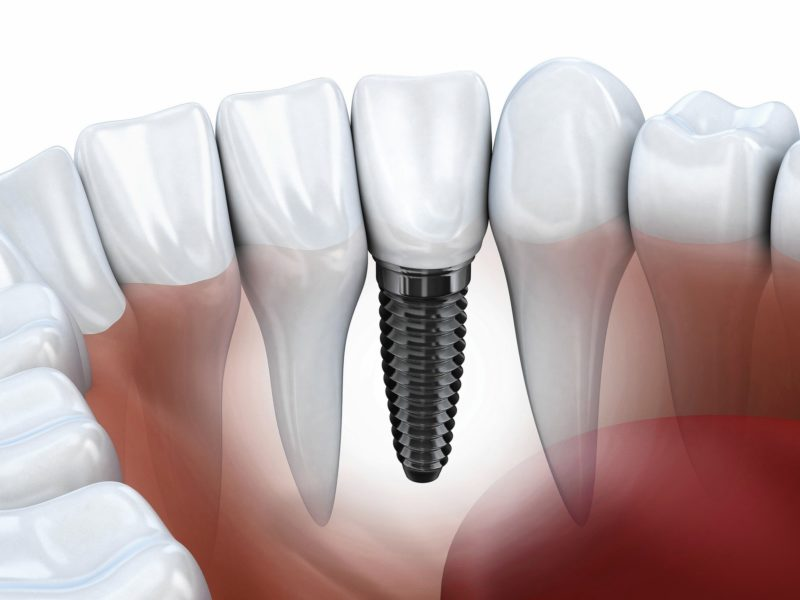 Implant Dentist Los Angeles