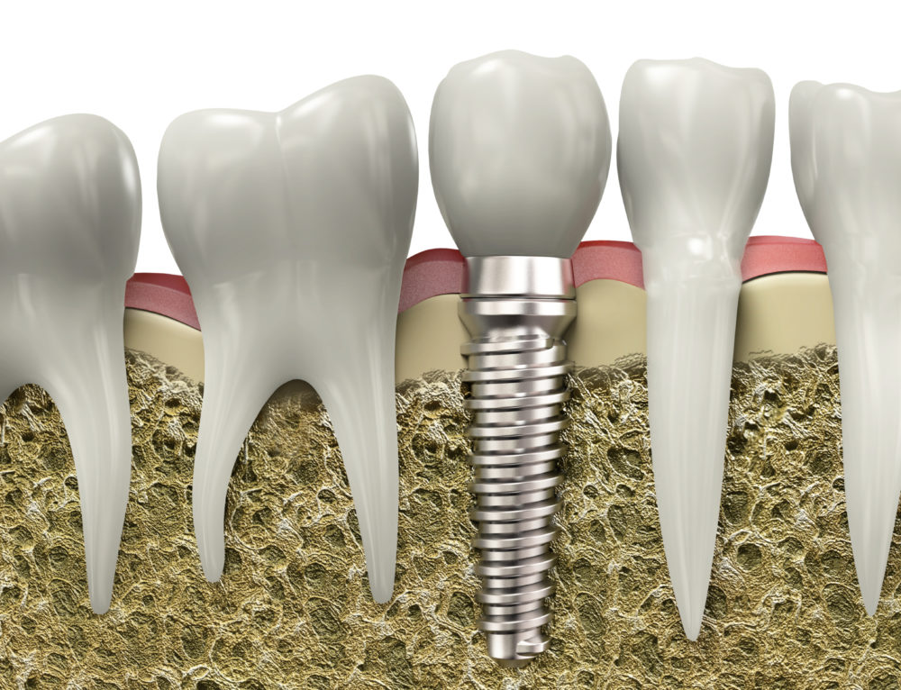 Five Must-Ask Questions for Your Implant Dentist