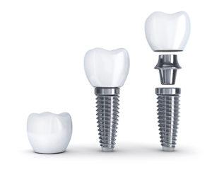 Implant Dentist