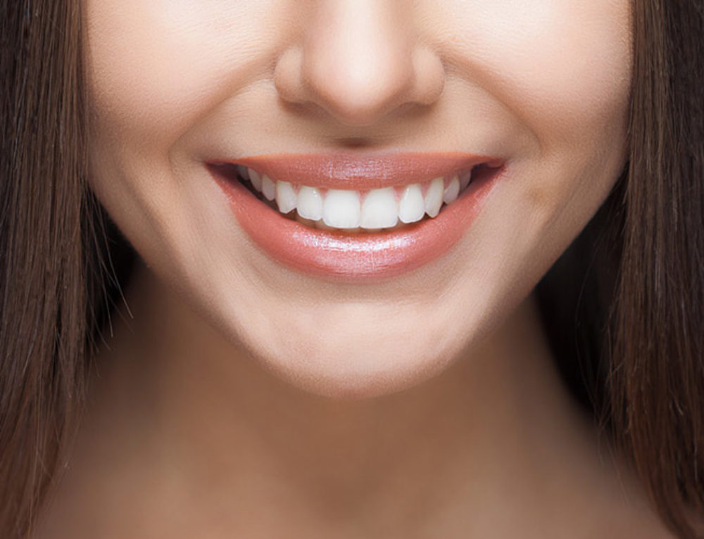 Cosmetic Dentistry | Top Reasons to Get Dental Veneers