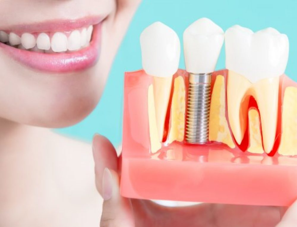 Implant Dentistry: How to Find The Best Implant Dentist